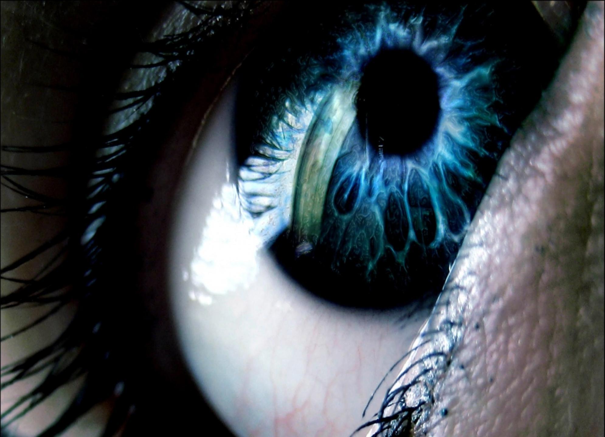 والپر های چشم